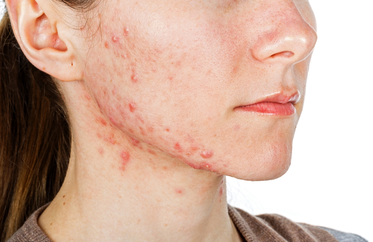 acne treatment reno accutane